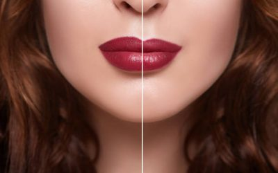 Best Lip Injections Perth. Fresh Faces Cosmetic Medicine