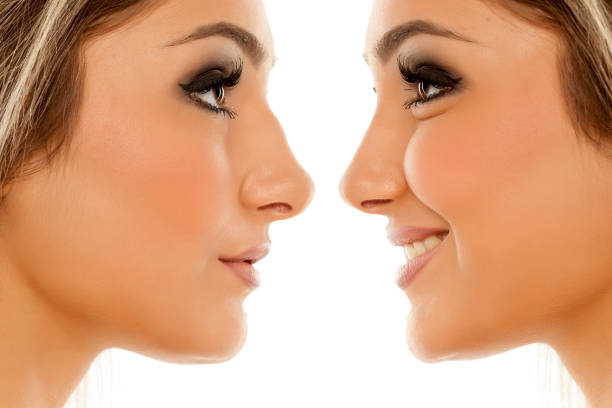 A nose job without the surgery? YES! It's possible!