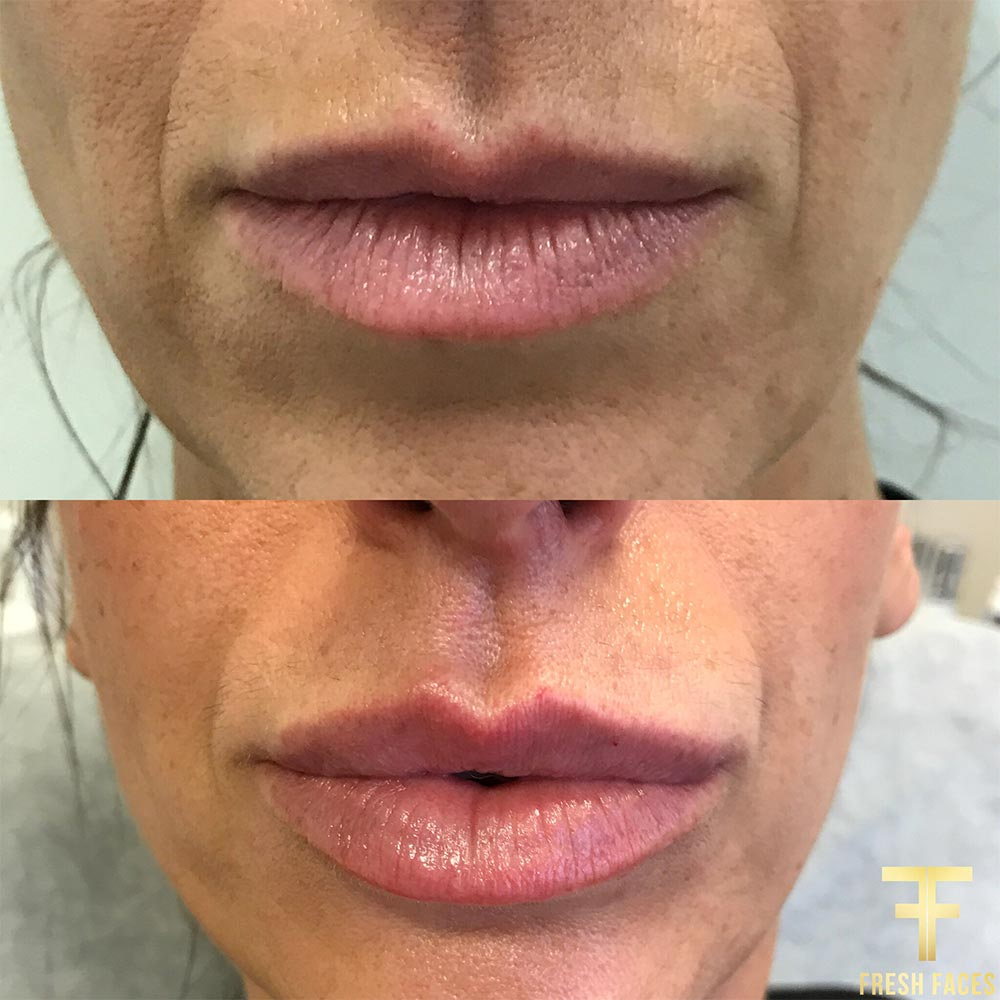 Fresh Faces Perth for the best natural lip injections. Before and after photos, book a free consultation.