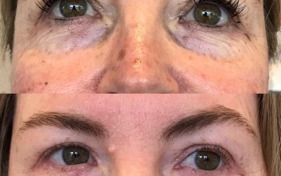 Tear Trough fillers Perth. No surgery, for beautiful eyes