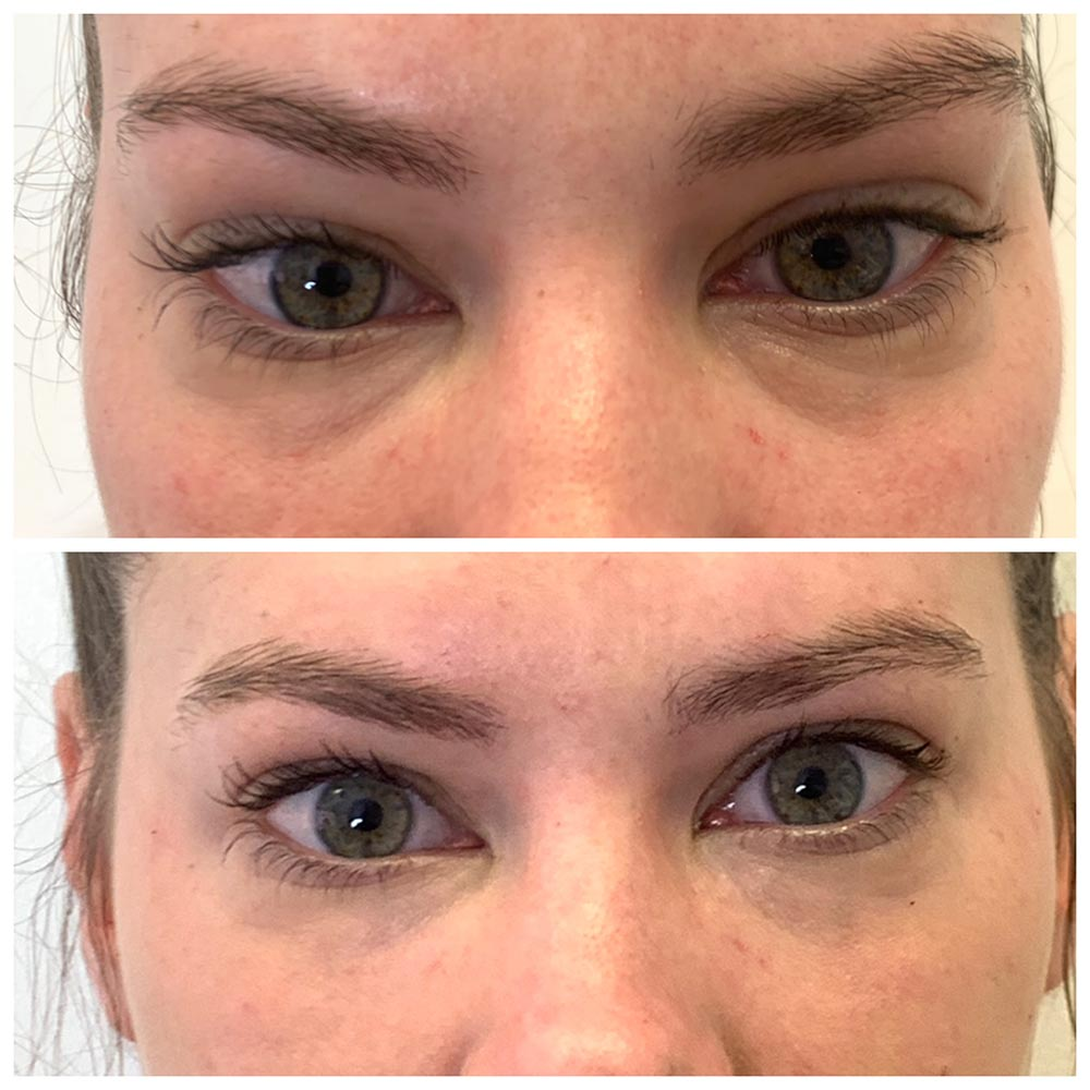 Tear Trough fillers before and after. Erase dark circles and bags from under eyes. Fresh Faces Cosmetic Medicine Perth