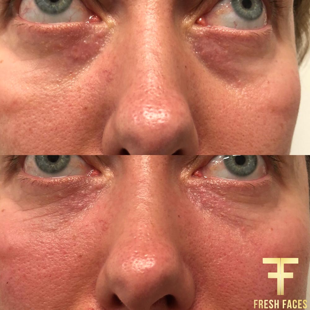 Before and after photo, under eye fillers Perth. Natural fillers for younger eyes. Fresh Faces Cosmetic Medicine Perth