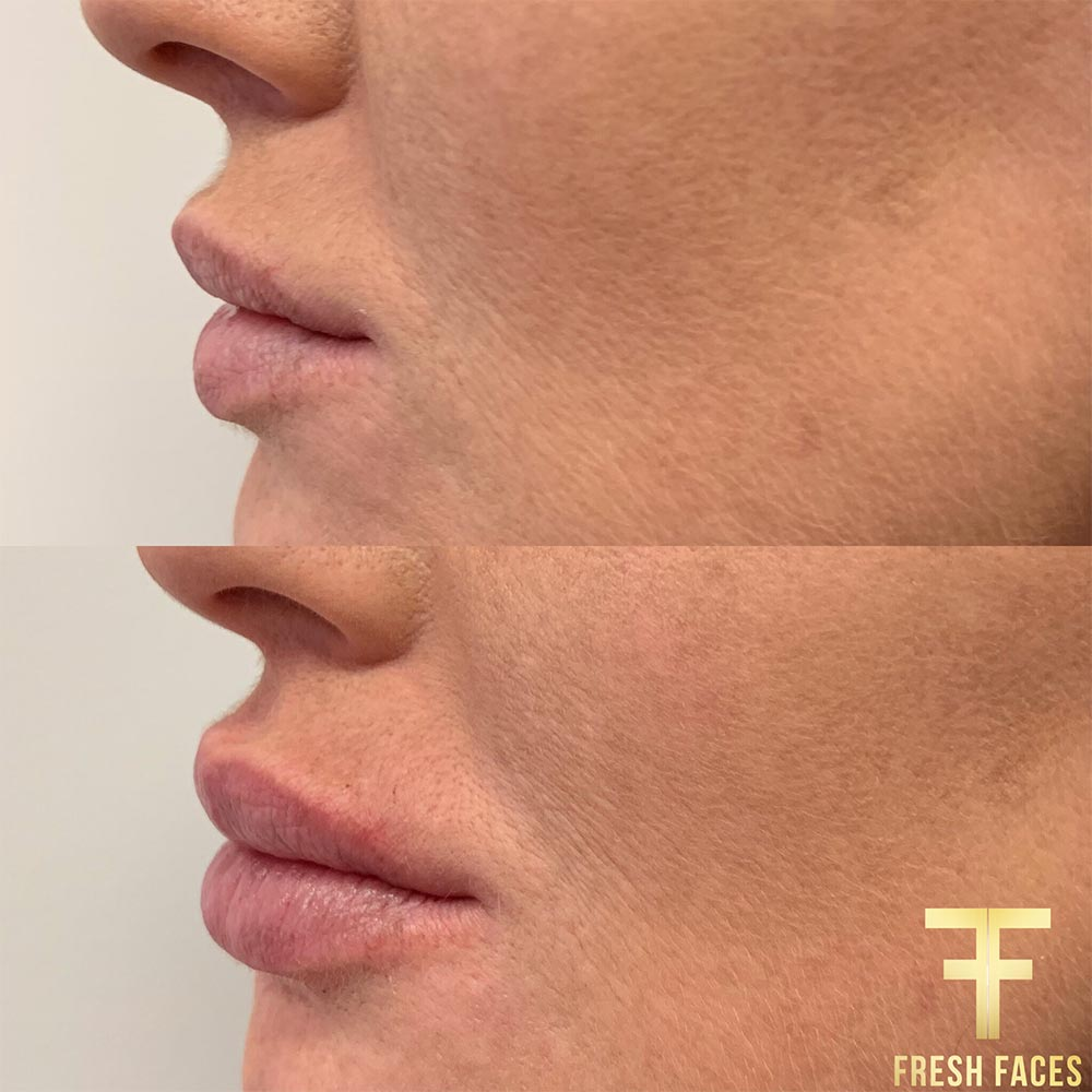 Lip filler before and after photos, Fresh Faces Perth for the best natural lip fillers. Book a free consultation