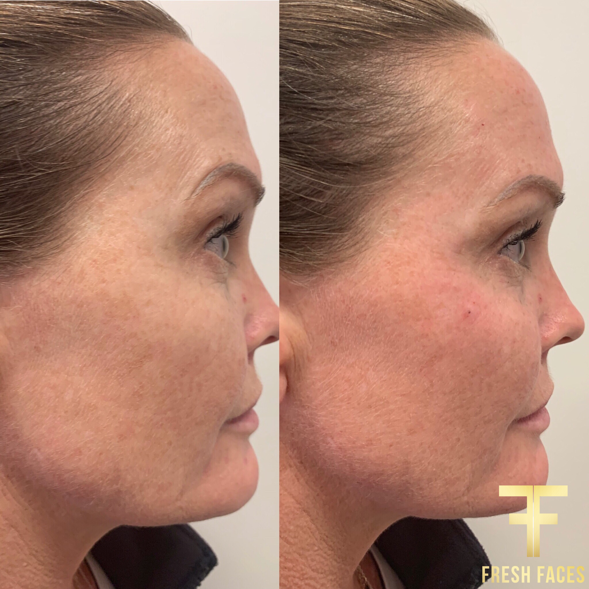 Cheek fillers before and after photos. Beautiful natural results from Fresh Faces Perth. Book your free consultation.