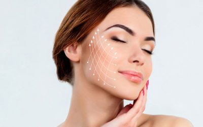 Silhouette Soft Thread Lift at Fresh Faces Cosmetic Medicine