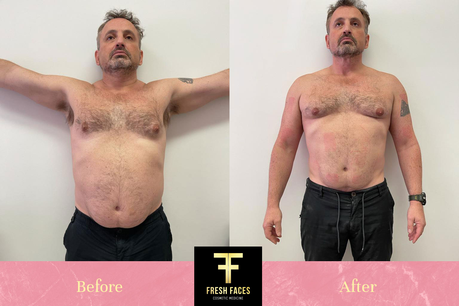 Body Sculpting Perth Before and After 2