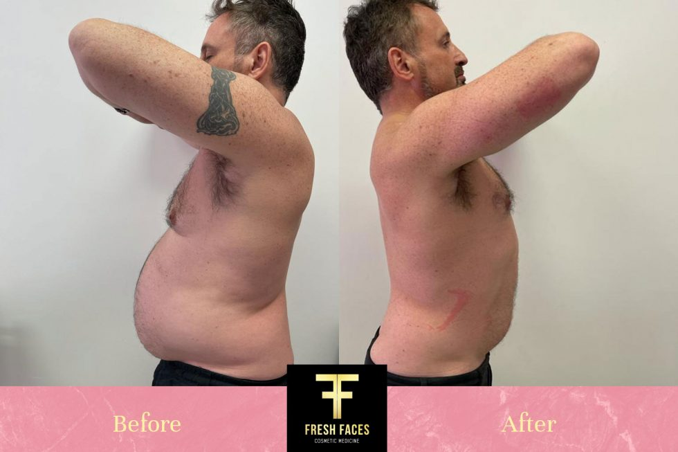 Body sculpting Perth before and after