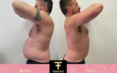 TruSculpt Before & After – our own Dr Ilan Josephs!