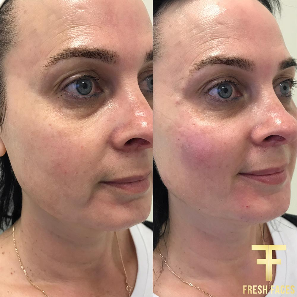 Natural dermal fillers, Fresh Faces Perth, the best dermal fillers for lifting, adding volume and smoothing skin