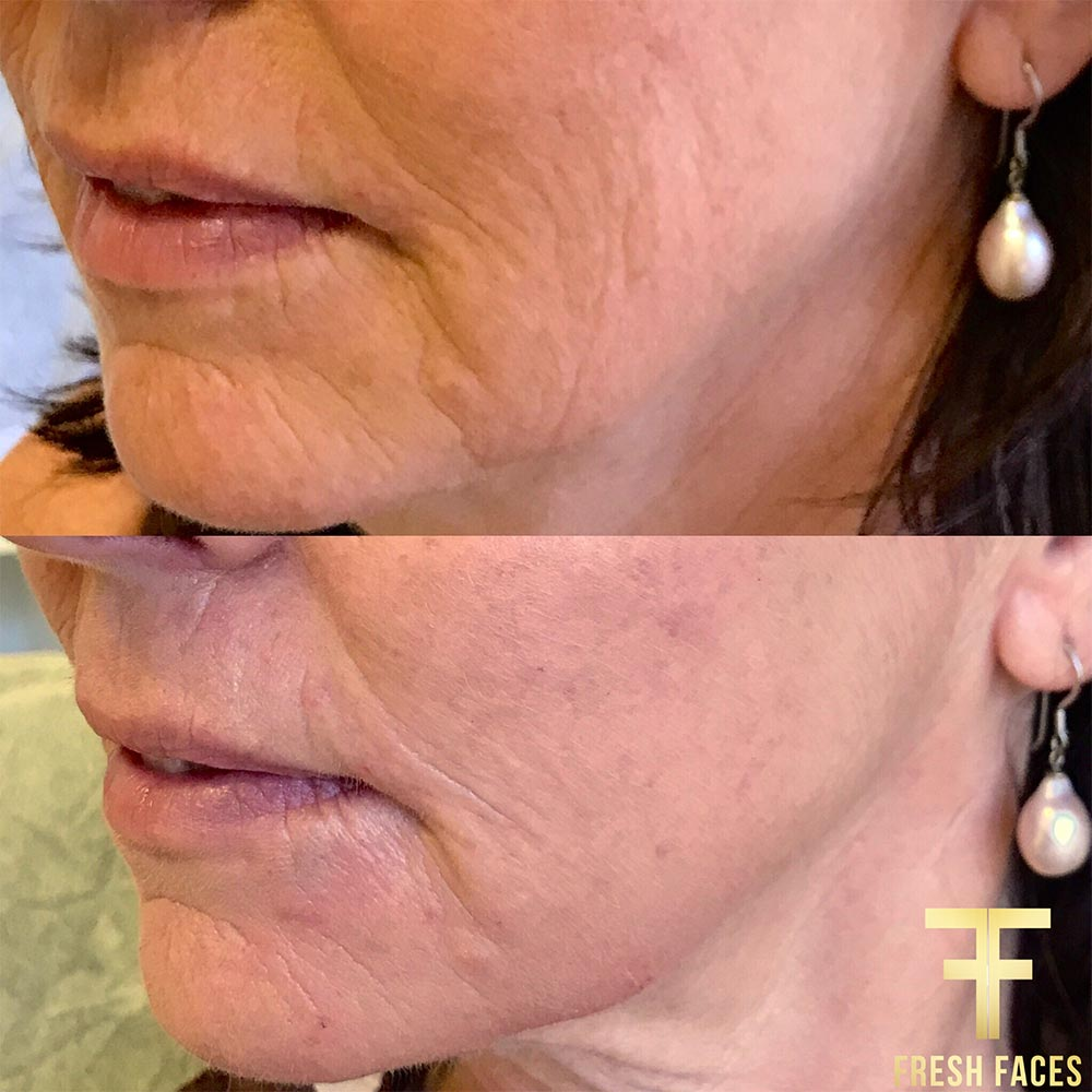 Best results, dermal fillers Perth. Natural enhancement for younger smoother skin. Book a free consultation with us today