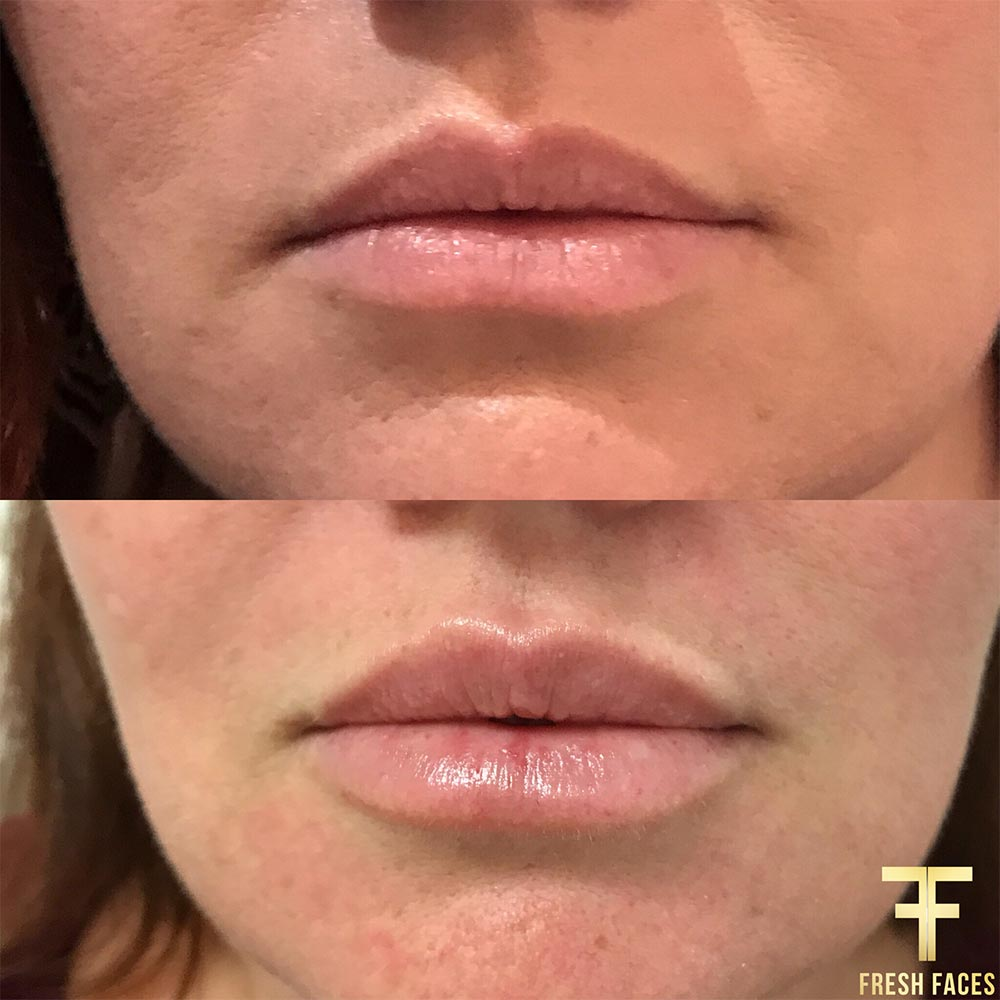 Lip fillers before and after. Book a free consultation at Fresh Faces. The best natural lip fillers in Perth.